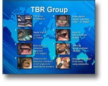 DVD-Vidéo de présentation du groupe TBR